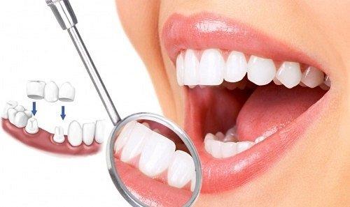 Tìm hiểu về kỹ thuật trồng răng sứ hiện nay 1