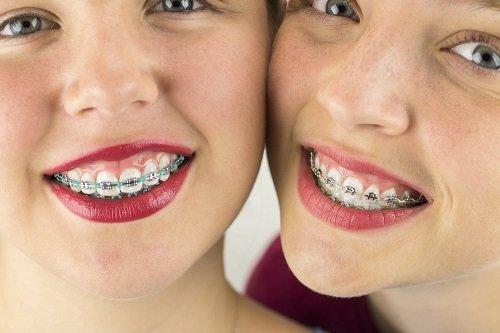 Niềng răng chỉnh hàm lệch có hiệu quả không? 1