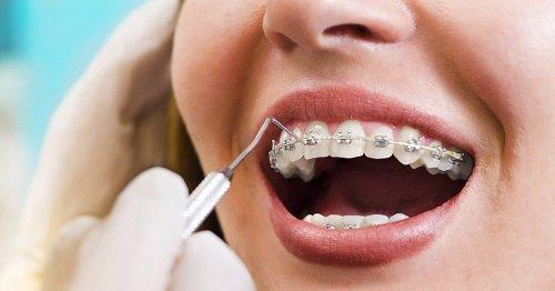 Niềng răng chỉnh hàm lệch có hiệu quả không? 2