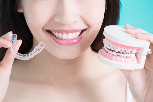 Niềng răng chỉnh hàm lệch có hiệu quả không? 3