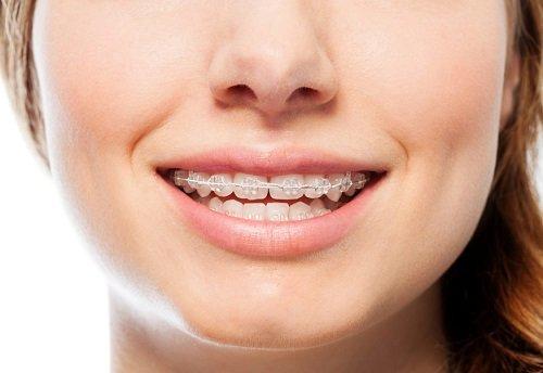 Niềng răng có ảnh hưởng đến sức khỏe không? Tư vấn 1