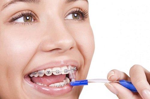 Niềng răng có ảnh hưởng đến sức khỏe không? Tư vấn 3