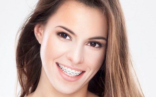 Niềng răng có bị hóp má không? Nha khoa giải đáp 1