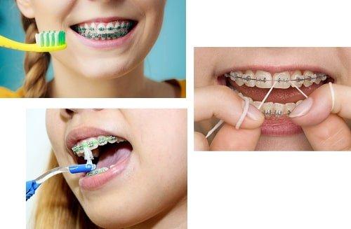 Niềng răng có bị hóp má không? Nha khoa giải đáp 3