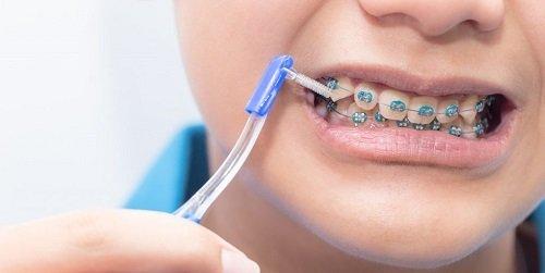 Niềng răng dùng bàn chải gì giúp vệ sinh hiệu quả? 1