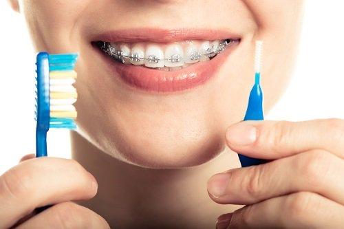 Niềng răng dùng bàn chải gì giúp vệ sinh hiệu quả? 2