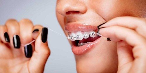 Niềng răng dùng bàn chải gì giúp vệ sinh hiệu quả? 3