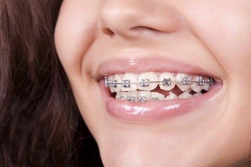 Niềng răng gây hôi miệng - Nguyên nhân chính do đâu 2