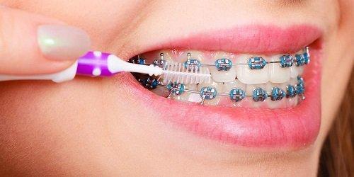 Niềng răng gây hôi miệng - Nguyên nhân chính do đâu 3