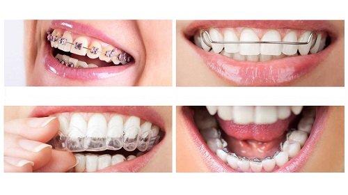 Niềng răng hô hàm trên bao nhiêu tiền? Tham khảo giá mới 2