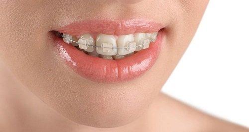 Niềng răng hô hàm trên bao nhiêu tiền? Tham khảo giá mới 3