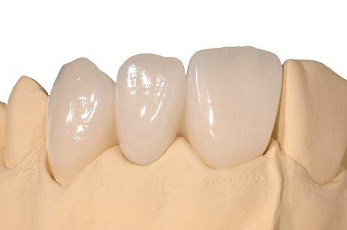 Răng sứ bị mòn phải khắc phục ra sao? 2