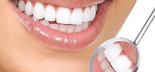 Răng sứ bị mòn phải khắc phục ra sao? 3