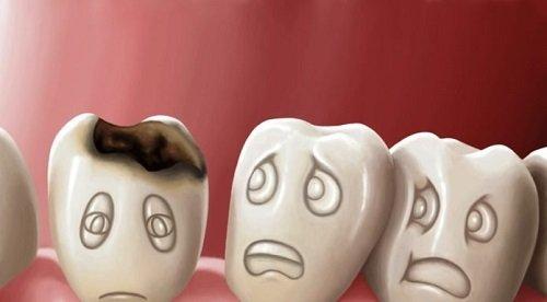 Răng sứ có bị sâu không? Kiến thức chuyên sâu về răng sứ 1