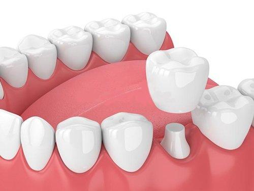 Răng sứ có bị sâu không? Kiến thức chuyên sâu về răng sứ 2