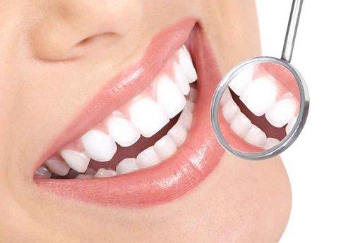 Răng sứ có bị sâu không? Kiến thức chuyên sâu về răng sứ 3