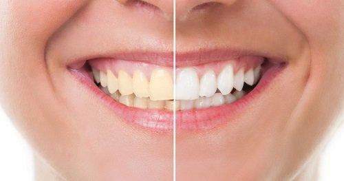 Trồng răng sứ bị đen chân răng là do đâu? 1