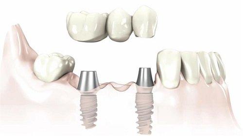 Trồng răng sứ có bị hôi miệng không? Cách chăm sóc răng đúng cách 2