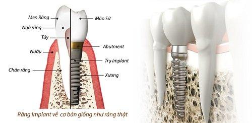 Trồng răng sứ có lâu không? Quy trình thực hiện 1