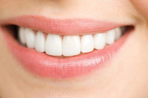 Thắc mắc vấn đề - Trồng răng sứ có phải lấy tủy không? 3