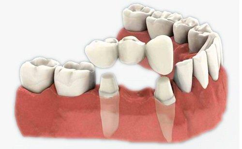 Trồng răng sứ có tốt không? Tìm hiểu từ nha khoa 1