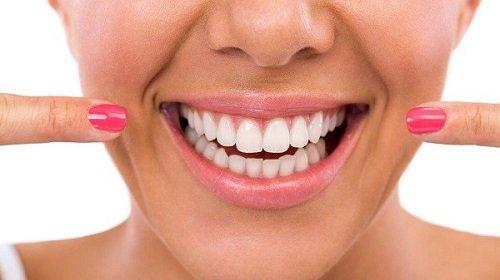 Trồng răng sứ có tốt không? Tìm hiểu từ nha khoa 3