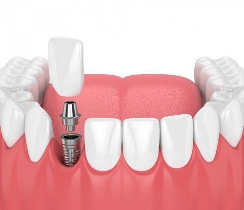 Trồng răng sứ dùng được bao lâu? Cần lời giải đáp 1