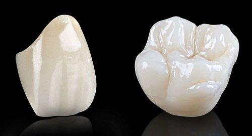 Trồng răng sứ dùng được bao lâu? Cần lời giải đáp 2