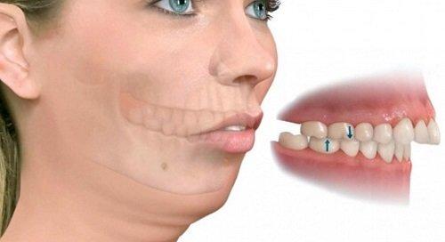 Niềng răng khớp cắn sâu là gì? Cách điều trị dứt điểm 1
