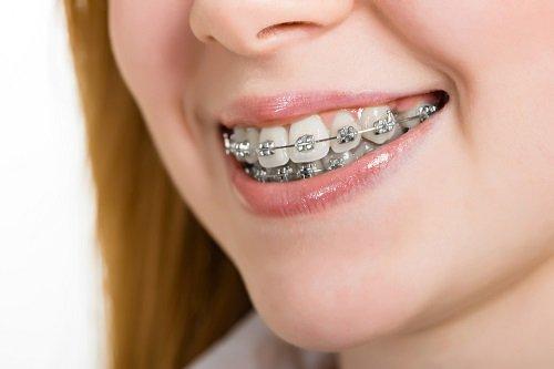 Niềng răng khớp cắn sâu là gì? Cách điều trị dứt điểm 2