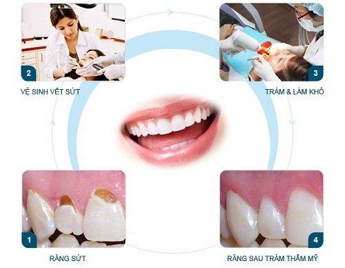 Trám răng cửa bị mẻ bao nhiêu tiền? 2