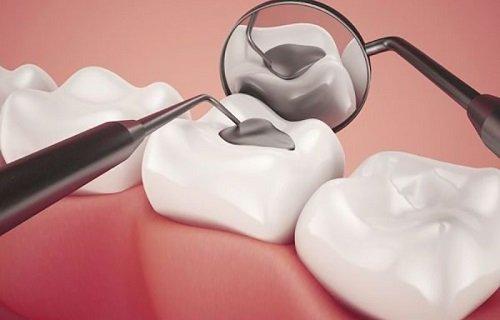 Trám răng sâu thẩm mỹ ở đâu tốt nhất hiện nay? 2