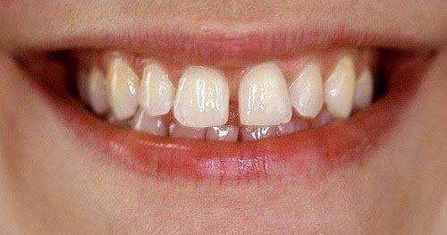Trám răng thưa bao nhiêu tiền? Có đắt không? 1