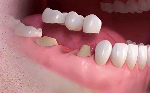 Trồng răng sứ tại Cần Thơ hiệu quả an toàn-2