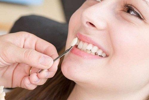 Trồng răng sứ tại Cần Thơ hiệu quả an toàn-3