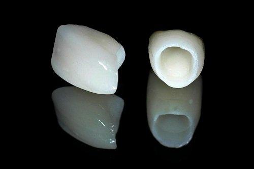 Trồng răng sứ không kim loại có nên không? Lý do 1