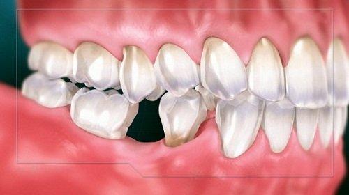 Trồng răng sứ mất thời gian bao lâu? Nhờ nha khoa giải đáp 1