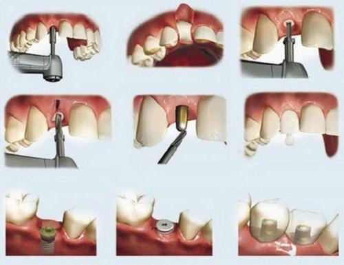 Trồng răng sứ mất thời gian bao lâu? Nhờ nha khoa giải đáp 3