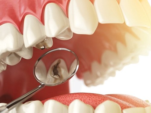 Trám răng mất thời gian bao lâu là hoàn thành? 1