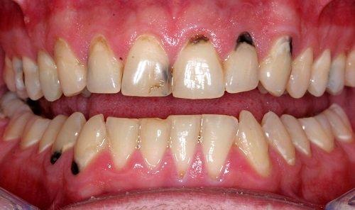 Trám răng mất thời gian bao lâu là hoàn thành? 2