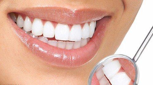 Trám răng mất thời gian bao lâu là hoàn thành? 3