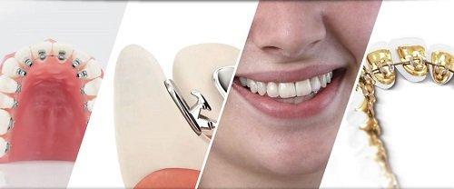 Niềng răng mặt trong giá rẻ bạn đã biết chưa? 2