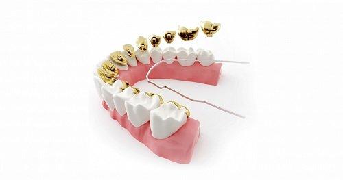 Niềng răng mặt trong giá rẻ bạn đã biết chưa? 3
