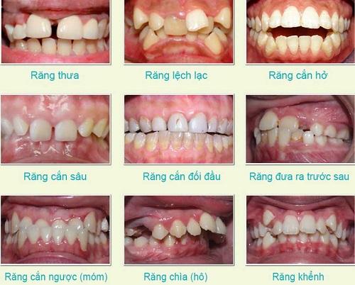 Top 3 địa chỉ niềng răng tại Cần Thơ - Bạn nên tham khảo ngay 2