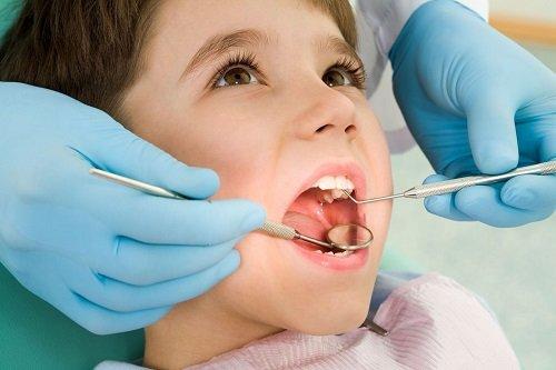 Trám răng cho trẻ em cần lưu ý những điều gì? 2