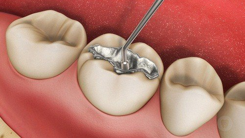 Trám răng xong bị nhức nguyên nhân do đâu? Cách xử lý 3