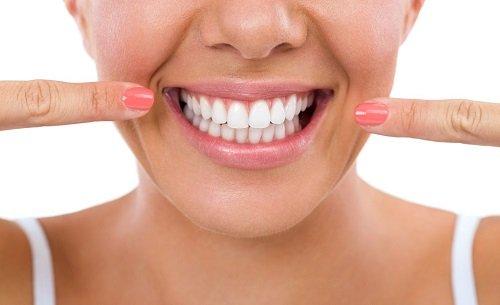 Bọc răng sứ ở Cần Thơ giá bao nhiêu? Tham khảo chi phí 1