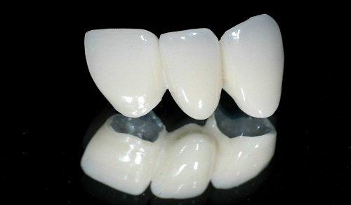 Bọc răng sứ ở Cần Thơ giá bao nhiêu? Tham khảo chi phí 2