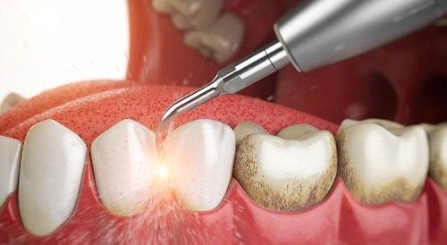 Cạo vôi răng siêu âm an toàn hiệu quả 2