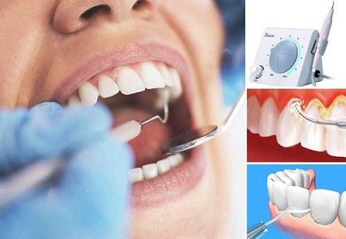Cạo vôi răng siêu âm an toàn hiệu quả 3